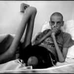 اثرات بر بدن پس از فاجعه چرنوبیل